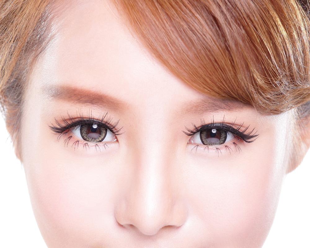 鼻中隔延長術の修正